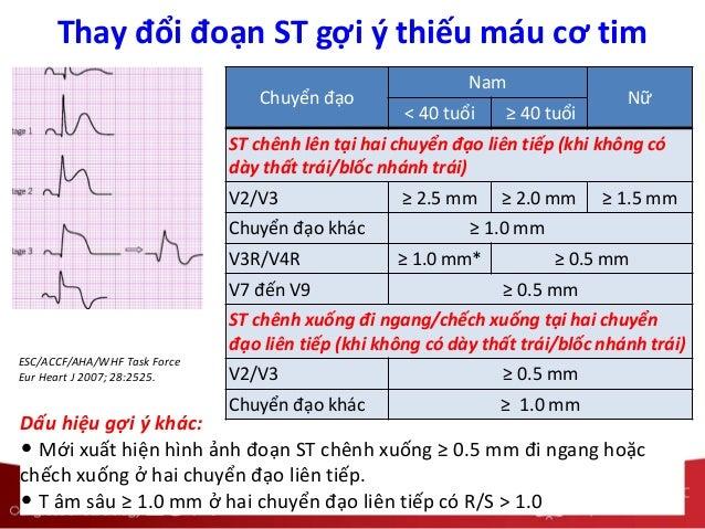 Dấu hiệu gợi ý khác: • Mới xuất hiện hình ảnh đoạn ST chênh xuống ≥ 0.5 mm đi ngang hoặc chếch xuống ở hai chuyển đạo liên...