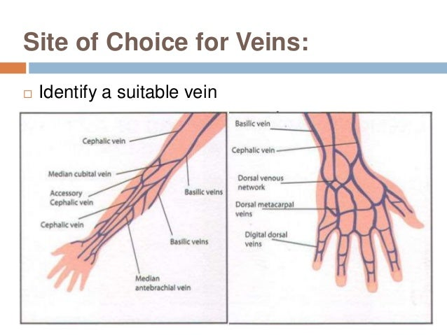 sclerosed veins for phlebotomy Intracatheters