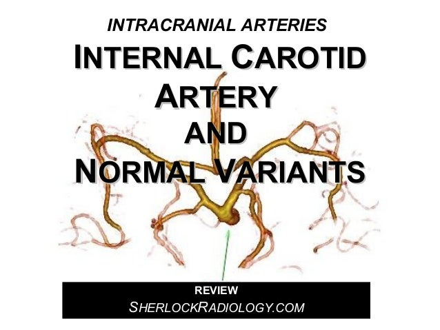INTRACRANIAL ARTERIES  INTERNAL CAROTID ARTERY AND NORMAL VARIANTS  REVIEW  SHERLOCKRADIOLOGY.COM