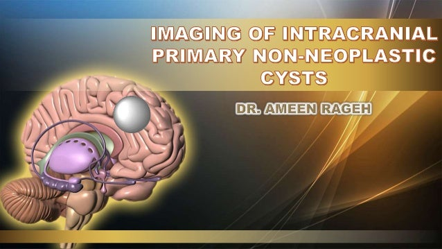 Imaging Of Intracranial Primary Non Neoplastic Cysts