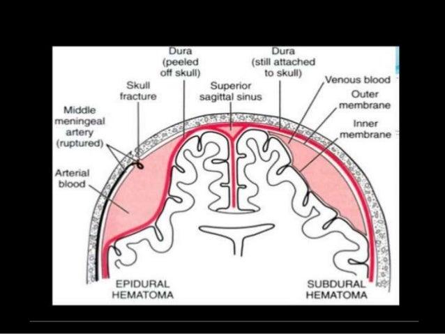 subdural hematoma vs intracranial hemorrhage