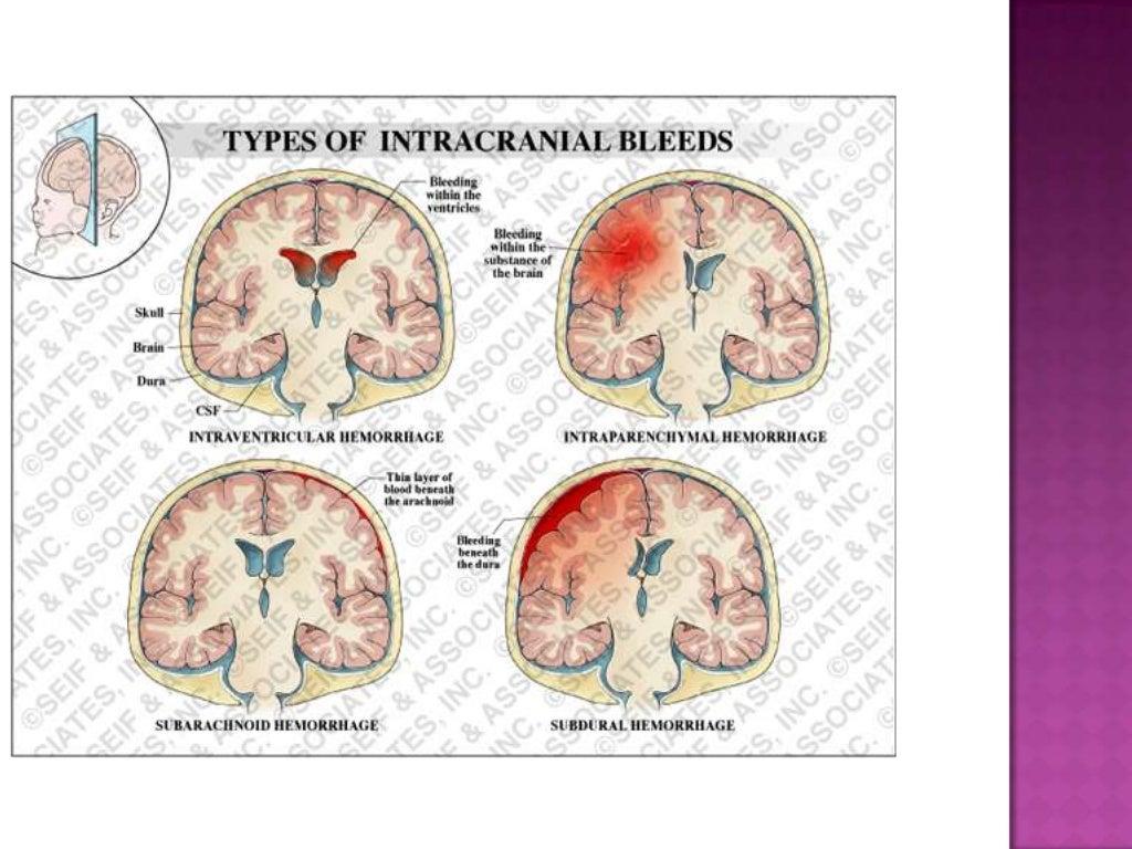 Intracranial hemorrhage newborn