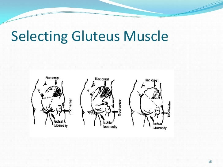 Selecting Gluteus Muscle                           18