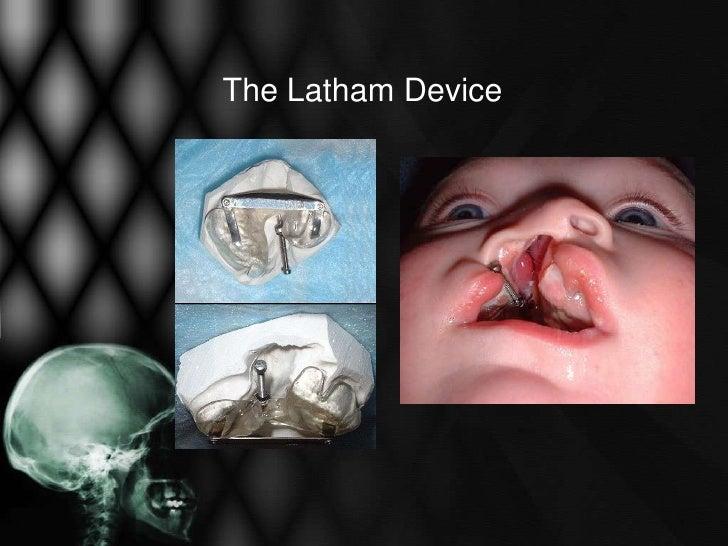 Latham Device