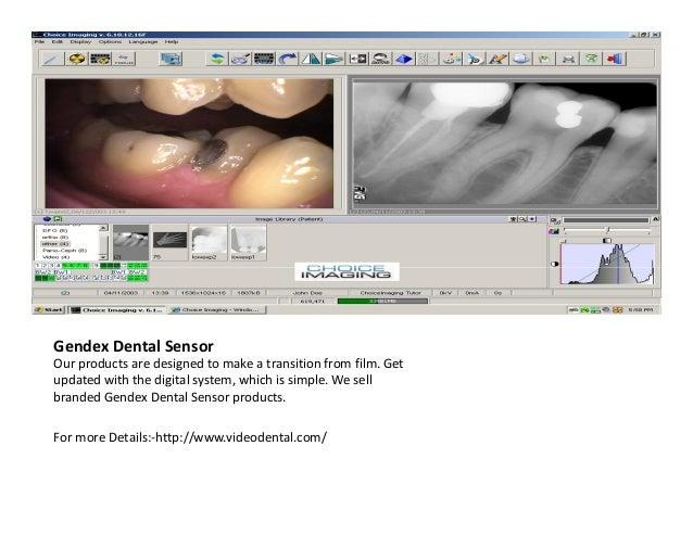 Intraoral Sensor