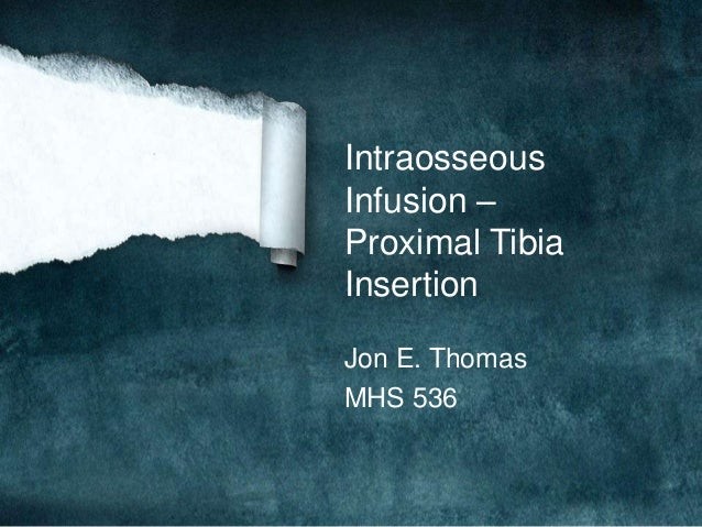 IntraosseousInfusion –Proximal TibiaInsertionJon E. ThomasMHS 536