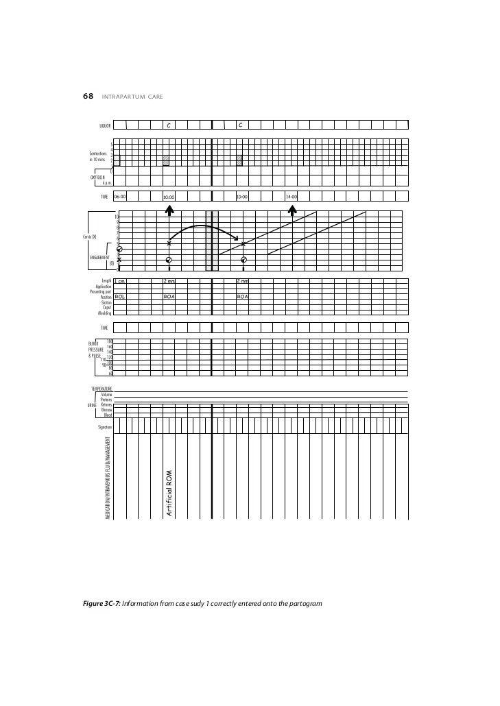 Partogram action line study: a randomised trial - Lavender ...