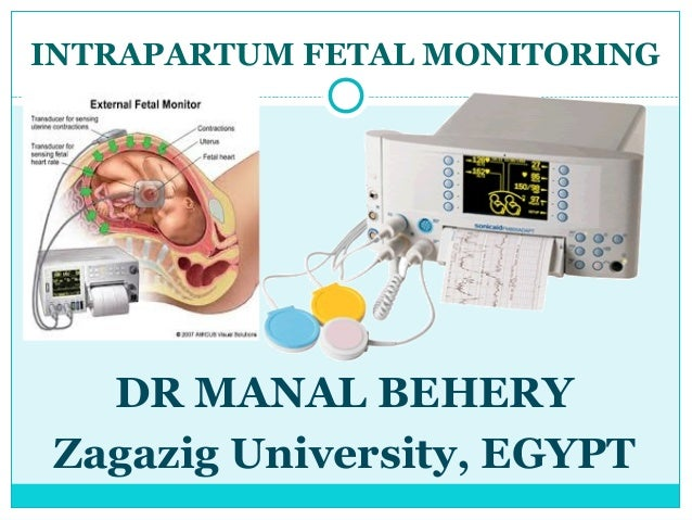 INTRAPARTUM FETAL MONITORING   DR MANAL BEHERY Zagazig University, EGYPT