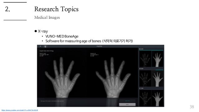 Research Topics  X-ray • VUNO-MED BoneAge • Software for measuring age of bones (식약처 의료기기 허가) 38 Medical Images 2. https:...