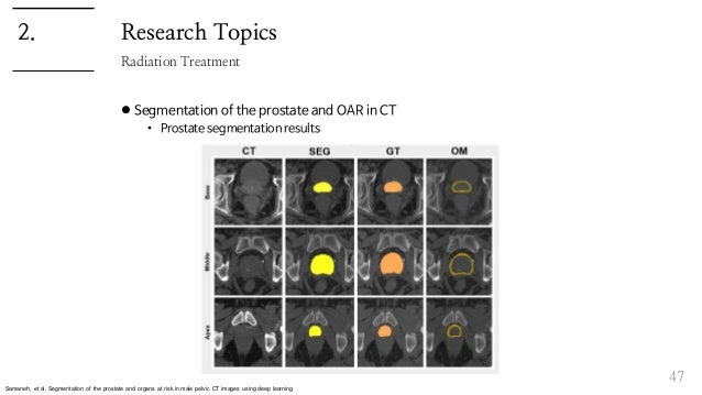 Research Topics  Segmentation of the prostate and OAR in CT • Prostate segmentation results 47 Radiation Treatment 2. Sam...
