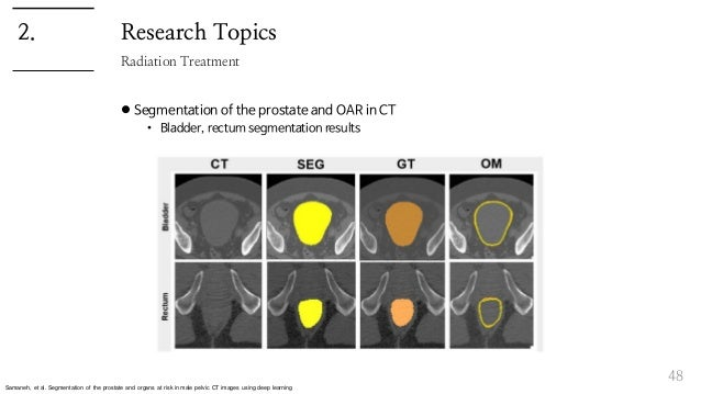 Research Topics  Segmentation of the prostate and OAR in CT • Bladder, rectum segmentation results 48 Radiation Treatment...