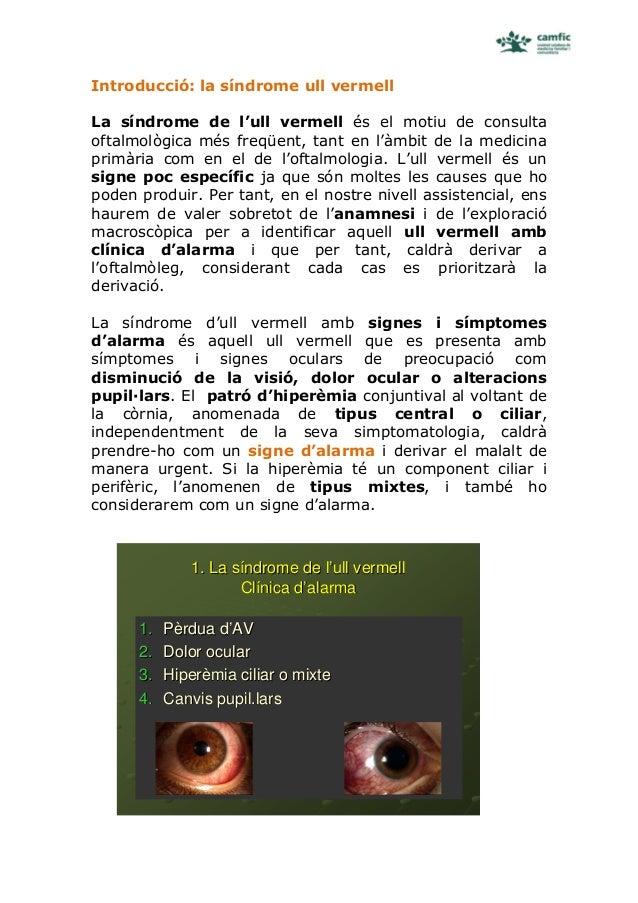 Introducció: la síndrome ull vermellLa síndrome de l'ull vermell és el motiu de consultaoftalmològica més freqüent, tant e...