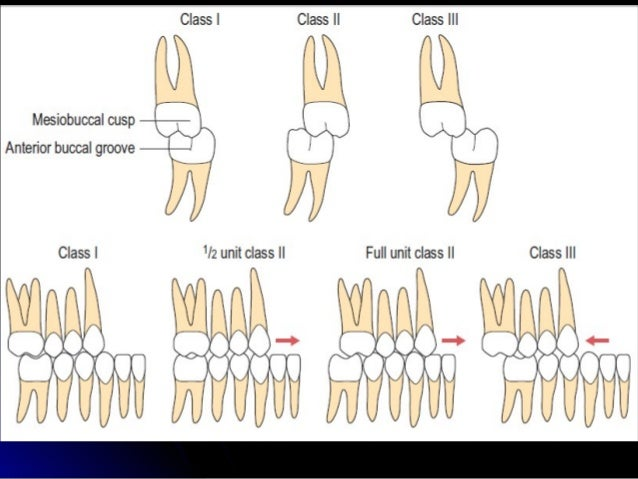 CLASSIFICATION OF NORMAL OCCLUSION AND MALOCCLUSION.