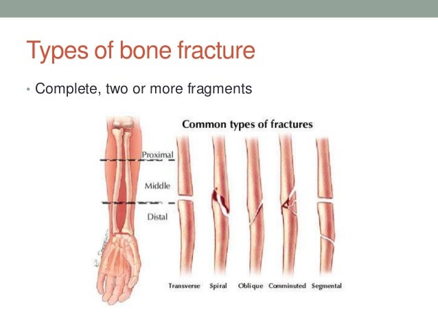 Introduction to bone fracture