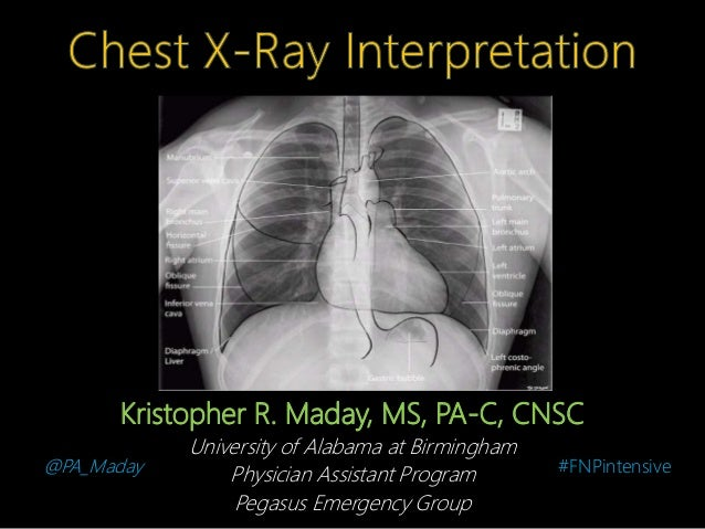 Introduction To Chest X Ray Interpretation