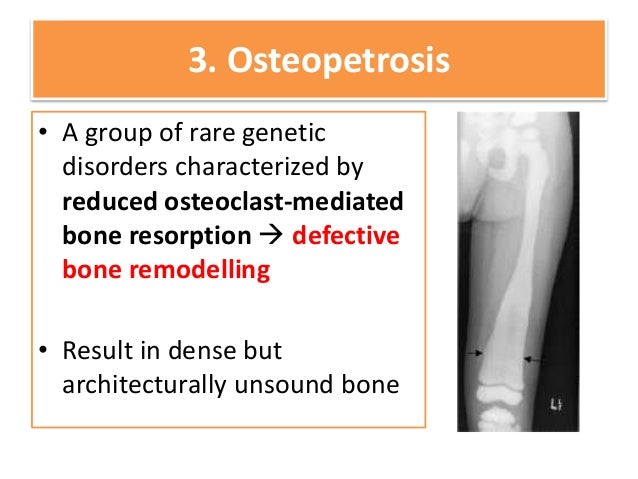 Introduction to Common Bone Disorders