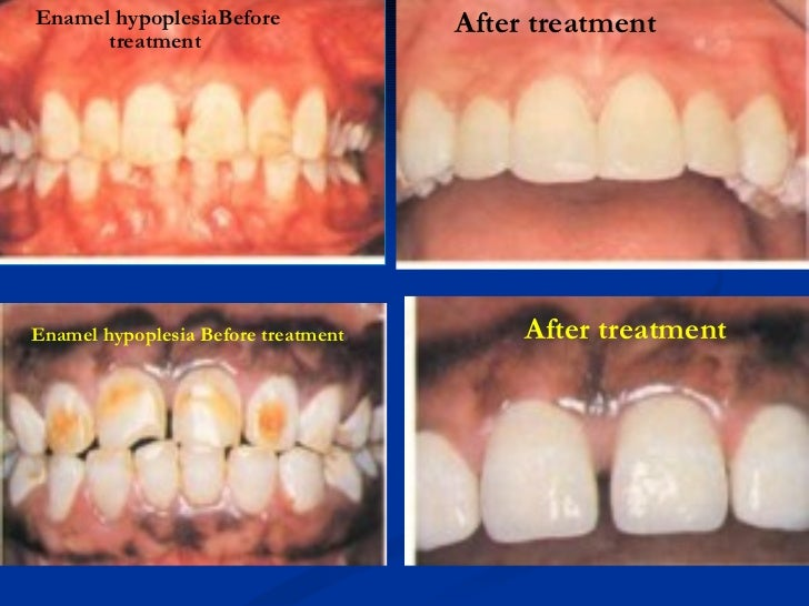 <ul><ul><li>Enamel hypoplesia  Before treatment </li></ul></ul><ul><ul><li>After treatment </li></ul></ul>Enamel hypoplesi...