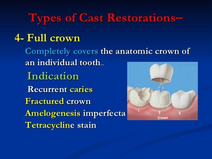 <ul><li>4- Full crown </li></ul><ul><ul><li>Completely covers  the anatomic crown of  </li></ul></ul><ul><ul><li>an indivi...