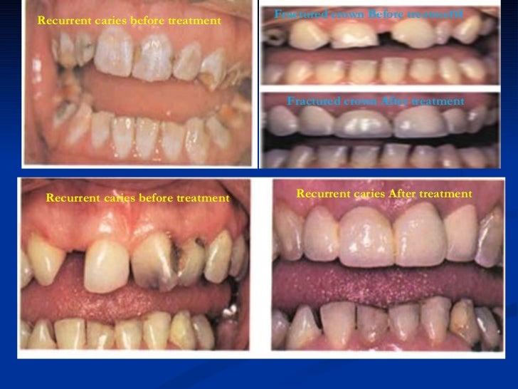 Recurrent caries before treatment Recurrent caries before treatment <ul><ul><li>Fractured crown Before treatme nt </li></u...