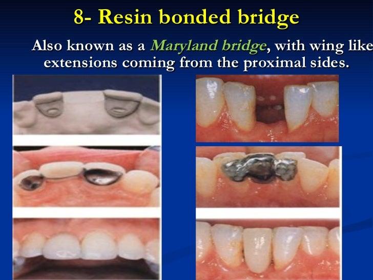 Introduction To Fixed Prosthodontics
