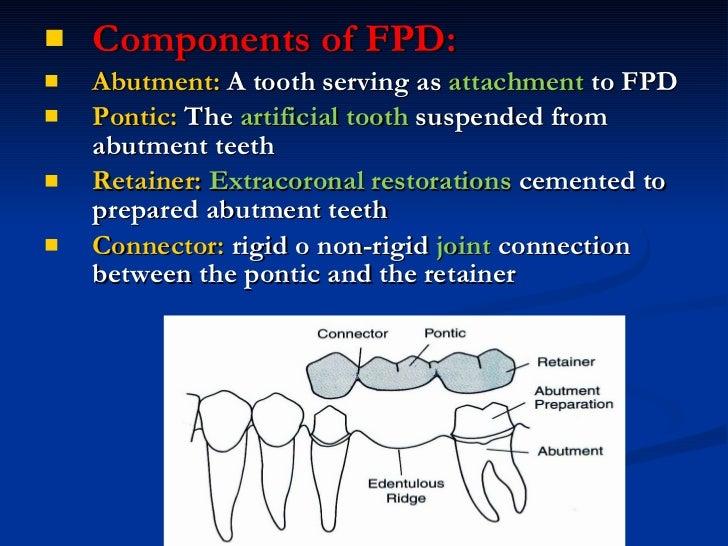 <ul><li>Components of FPD: </li></ul><ul><li>Abutment:  A tooth serving as  attachment  to FPD </li></ul><ul><li>Pontic:  ...
