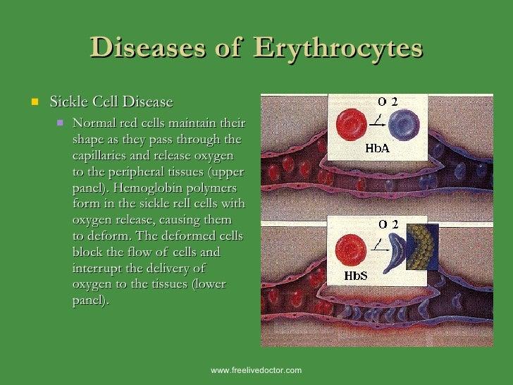 Diseases of Erythrocytes <ul><li>Sickle Cell Disease </li></ul><ul><ul><li>Normal red cells maintain their shape as they p...