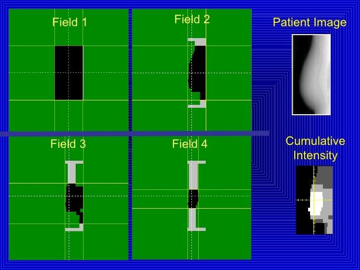 Patient Image Cumulative Intensity Field 1 Field 4 Field 3 Field 2