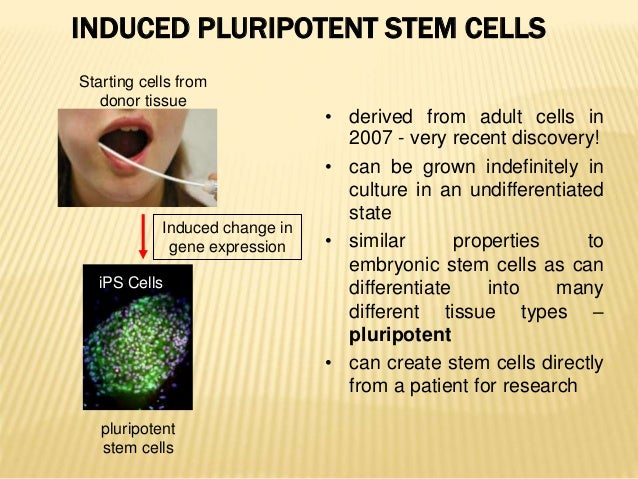 stem cell possibilities (edmonton) james shapiro, one of the world's leading experts in emerging treatments of diabetes, can't help but be excited about his latest research the results he.