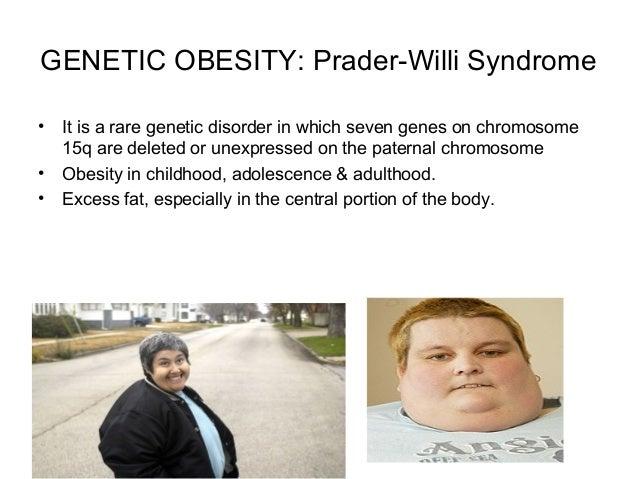 Intro Amp Etiology Of Obesity