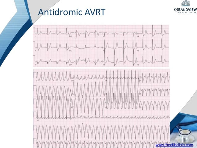 Introduction to Electrophysiology - Supraventricular ...