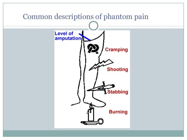 An introduction to the issue of phantom limb pain