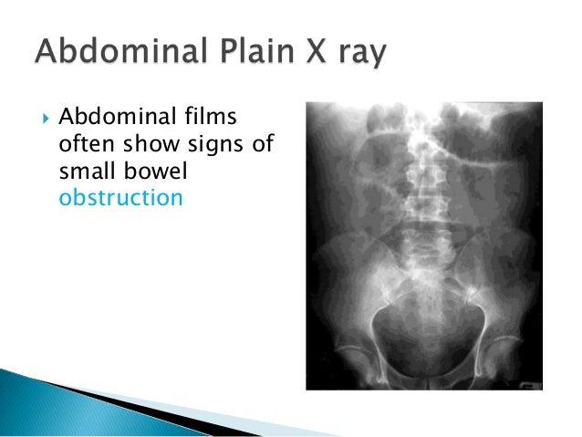 Gastroenteritis X Ray