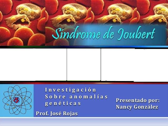 I n v e s t i g a c i ó n S o b r e a n o m a l í a s g e n é t i c a s Prof. José Rojas Presentado por: Nancy González