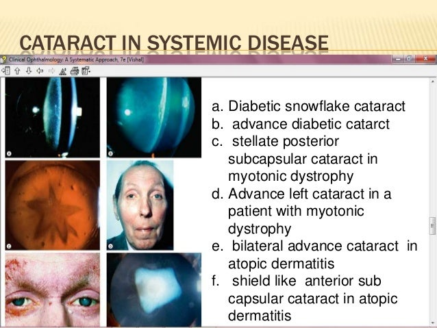 Diabetes and Eye Problems: Read About Symptoms and Treatment