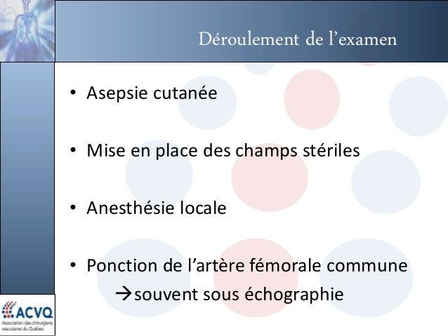 Déroulement de l'examen • Asepsie cutanée • Mise en place des champs stériles • Anesthésie locale • Ponction de l'artère f...