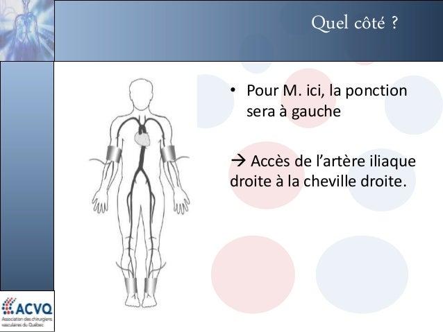 Quel côté ? • Pour M. ici, la ponction sera à gauche  Accès de l'artère iliaque droite à la cheville droite.