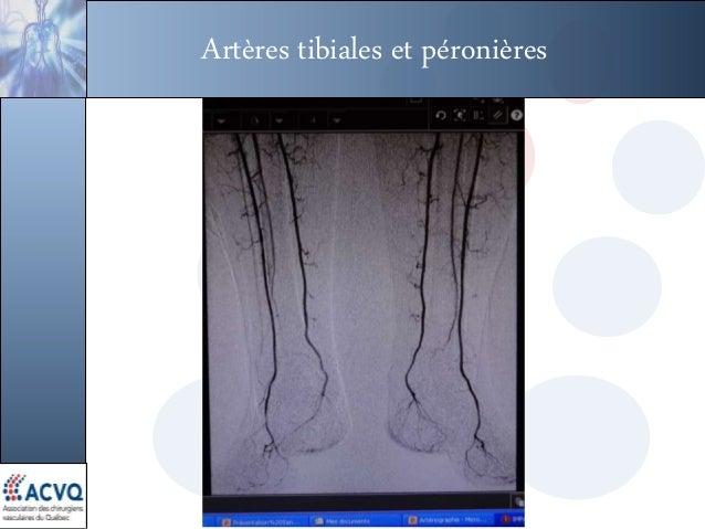 Artères tibiales et péronières