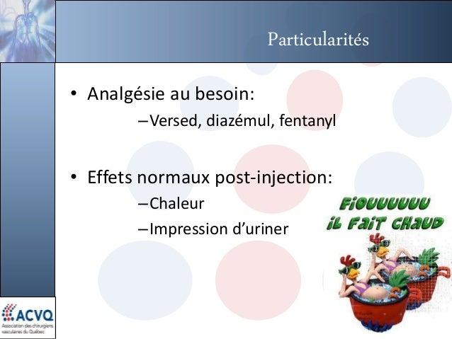 Particularités • Analgésie au besoin: –Versed, diazémul, fentanyl • Effets normaux post-injection: –Chaleur –Impression d'...