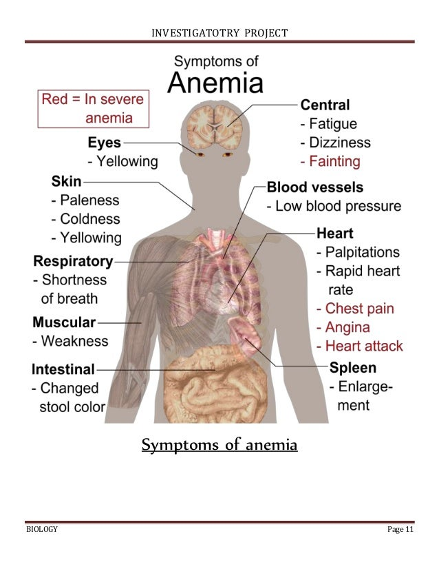 Anemia investigatory project class 11 investigatotry project biology page 11 symptoms of anemia malvernweather Choice Image
