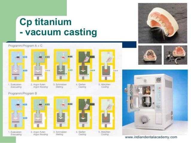 Investment materials and lost wax casting /orthodontic