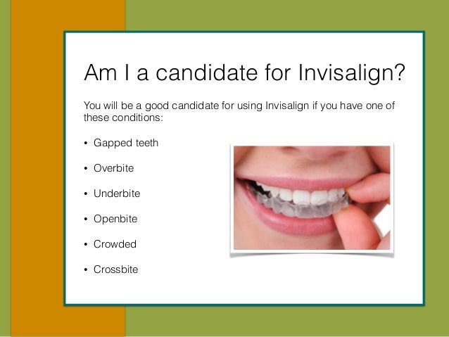 Your Guide To Invisalign