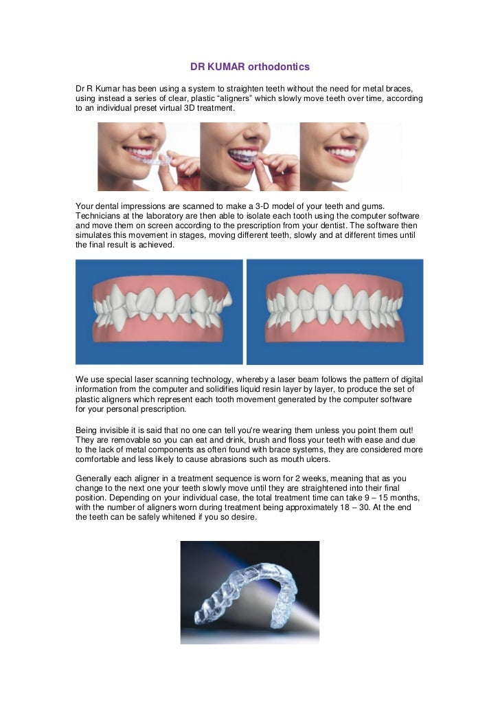 DR KUMAR orthodonticsDr R Kumar has been using a system to straighten teeth without the need for metal braces,using instea...