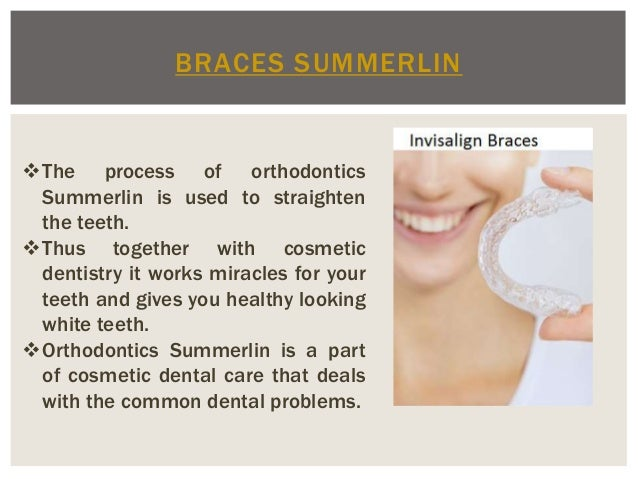 BRACES SUMMERLIN The process of orthodontics Summerlin is used to straighten the teeth. Thus together with cosmetic dent...