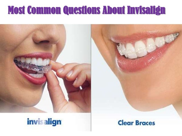 Most Common Questions About Invisalign
