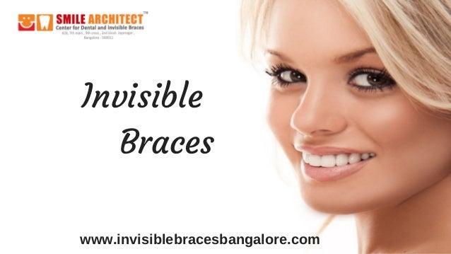 Invisible    Braces www.invisiblebracesbangalore.com