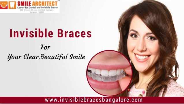 Invisible Braces www.invisiblebracesbangalore.com Invisible Braces For Your Clear,Beautiful Smile