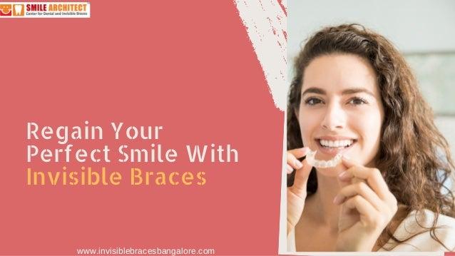 Regain Your Perfect Smile With Invisible Braces www.invisiblebracesbangalore.com