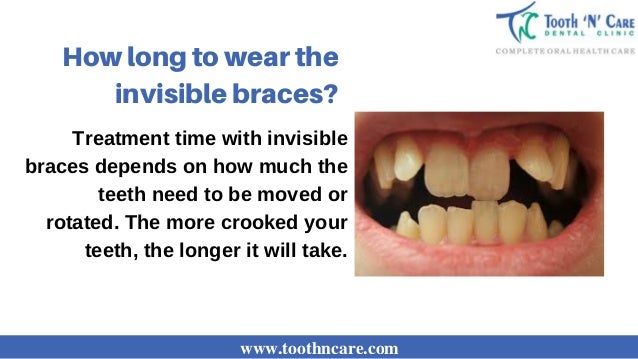 Invisible Braces In Chennai Teeth Straightening In Tamil Nadu