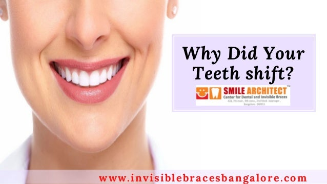 �Why Did Your Teeth shift? www.invisiblebracesbangalore.com