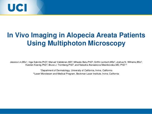 In Vivo Imaging in Alopecia Areata Patients Using Multiphoton Microscopy Jessica Lin,BSc1, Inga Saknite,PhD2, Manuel Valde...